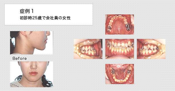 顔面非対称の矯正治療・症例|外...