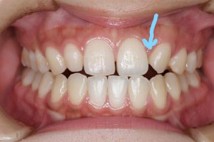 先天 性 欠損 歯
